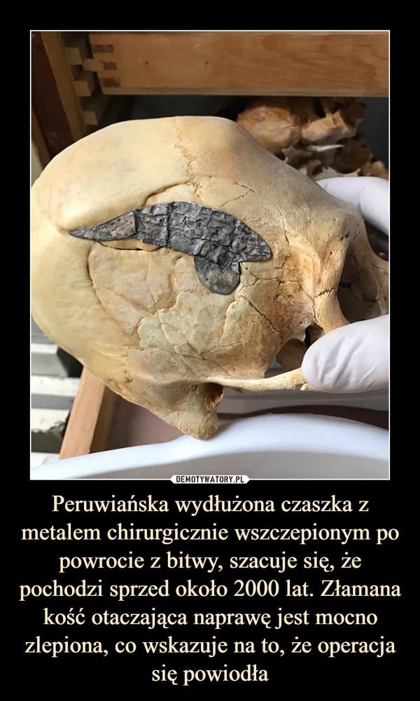 Peruwiańska wydłużona czaszka z metalem chirurgicznie wszczepionym po powrocie z bitwy, szacuje się, że pochodzi sprzed około 2000 lat. Złamana kość otaczająca naprawę jest mocno zlepiona, co wskazuje na to, że operacja się powiodła –